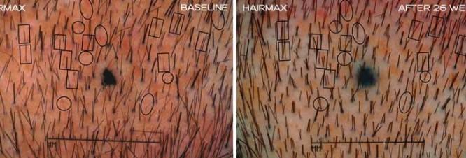 HairMax-clinical-study-photos-showing-new-hair-growth (1)
