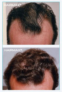 hairmax-before-after-slide2