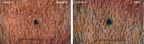 hairmax-clinical-study-non-vellus-hair-density-macro1