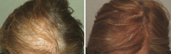 hairmax_before_after_female-1030x395