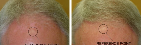 hairmax_before_after_male-1030x395